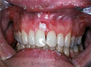 Oral Cancer Images - The Oral Cancer Foundation