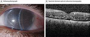 Intraretinal Crystals In Nephopathic Cystinosis And