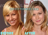 Brie Larson Plastic Surgery Before and After Ru...