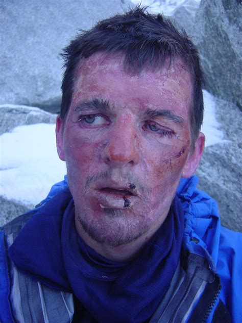 Snow Blindness Pictures Posters News And Videos On