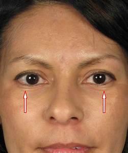 Skin Pinch Lower Eyelid Lift Blepharoplasty By San Diego