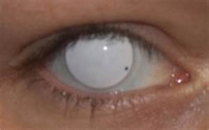 The gallery for --> White Eye Contacts No Pupil