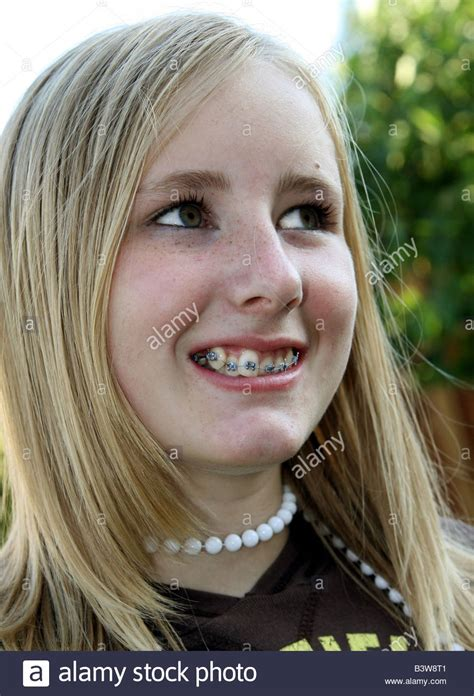 Pretty 12 Year Old Blonde Girl With Her New Braces, 2006
