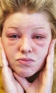 Суставы опухли и болят что делать