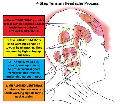 trigger point therapy tension type headaches tth