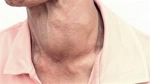 This Week On Thyroid Symptoms