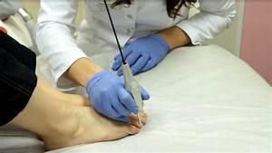 Как растет ноготь грибок ногтя