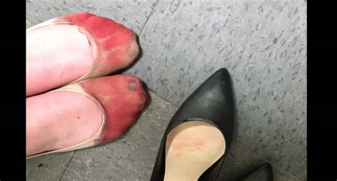 This girl was made to wear heels even after her feet were