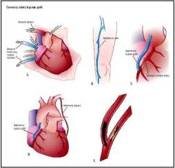 Coronary Artery Bypass Graft Leg coronary artery bypass graft surgery ... Coronary Artery Bypass Graft