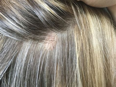 small flesh colored bumps on flesh colored bumps on scalp pictures photos
