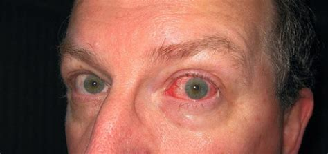 Juckende Augen Hausmittel gegen juckende & brennende Augen