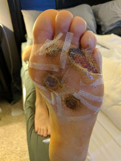 Dad Can't Walk As Foot Blisters And Bleeds From Common
