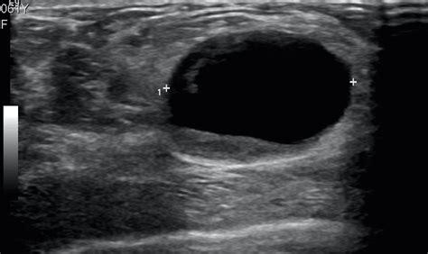 Malignant Cyst Left Breast Image Radiopaediaorg