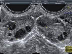 Normal Ovaries Ultrasound