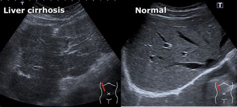 This video shows club foot fetal anomaly scan. Startradiology