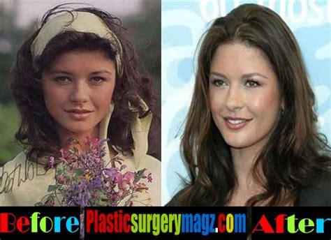 catherine zeta jones plastic surgery pictures plastic surgery magazine