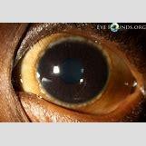 Cataract Surgery | 1024 x 699 jpeg 384kB