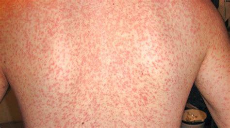 Mononucleosis Amoxicillin Rash