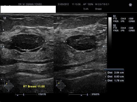 Fibroadenoma Of Breast Radiology Case Radiopaediaorg