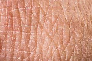 How To Treat Dry  Red Flaking Skin