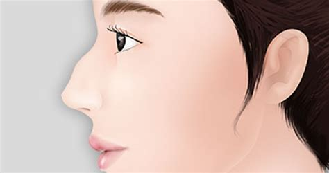 From Hooked Nose To Nose With Natual Height And Shape And