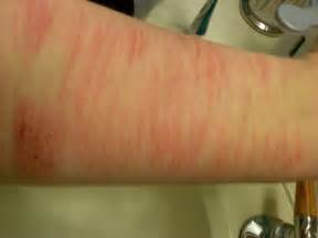 Cuts On Arms From Self Cutting Tumblr