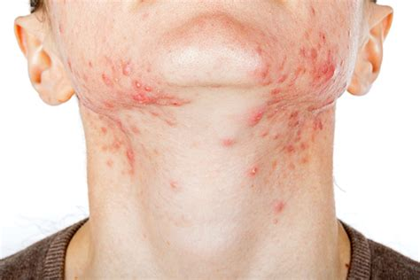 Causes Of Stress Rashes On Neck