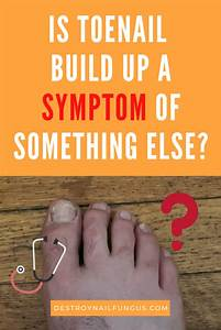 How To Get Rid Of Build Up Under Toenails  The Ultimate