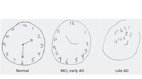 clock drawing test doctors screen for alzheimer s by patients draw a clock