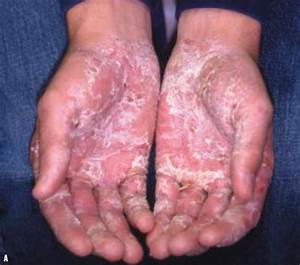 Pictures Of Eczema