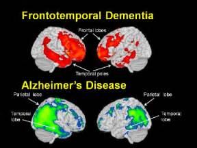 Frontotemporal Lobe Dementia Brain Images