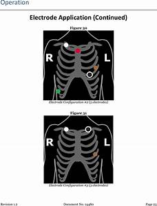 Tz Medical Tzmr3g Ambulatory Electrocardiograph Monitor