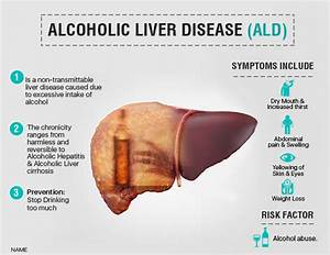 Liver Disease - Pictures, posters, news and videos on your ...
