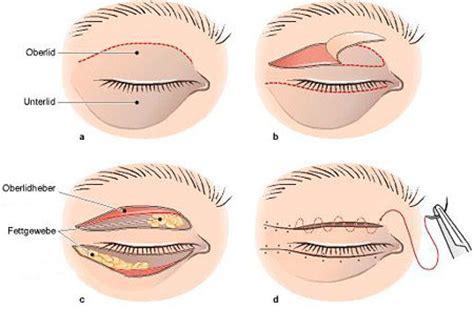 Facelift Berlin Plastische Chirurgie Berlin