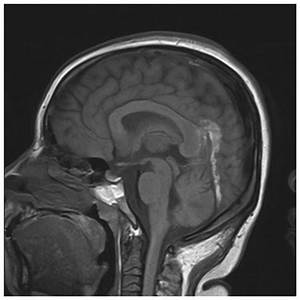 Early Imaging Characteristics Of 62 Cases Of Cerebral Venous Sinus Thrombosis