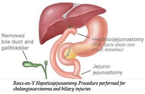 roux en  hepaticojejunostomy procedure performed