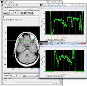 6 Image Display And Analysis