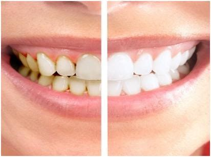 cost  teeth cleaning clean teeth  good healthhow