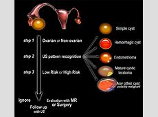 The Radiology Assistant Diagnostic Work up of Ovarian Cysts