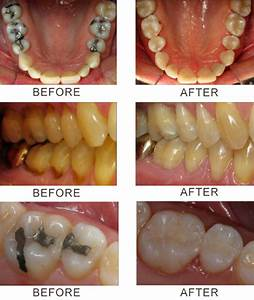 Composite Fillings | LA Smiles Dentistry
