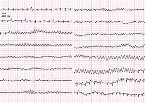 Brugada Syndrome Presenting as Polymorphic Ventricular ...