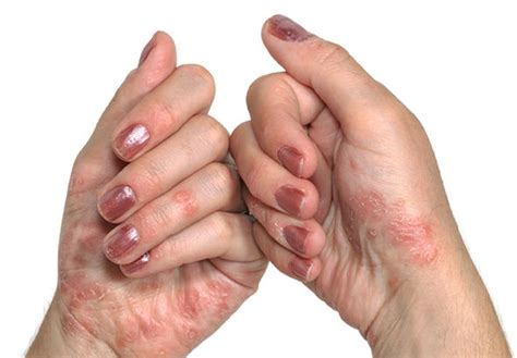 10 Natural Remedies for Psoriasis Daily Natural Remedies