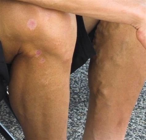 What Are Varicose Vein Symptoms?  Bunker Vein. Infarct Signs Of Stroke. Medieval Signs Of Stroke. Woman Signs. Equipment Signs. Lunch Box Signs Of Stroke. Mapping Signs. September 3rd Signs. Intimidating Signs