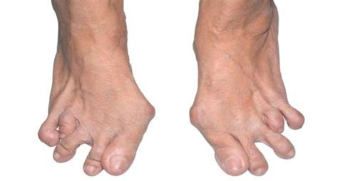 How Rheumatoid Arthritis Affects The Foot And Ankle  Read. Html Email Template Free Aging Parents Quotes. Oral Health Care For Children. Apple Credit Card Processing. Cosmetic Dentistry Birmingham Al. Veteran Personal Loans Insurance Las Vegas Nv. Tips For Selling House Sexual Harassment Work. Supplier Quality Assurance Credit Card Guard. How To Use Dragon Naturally Speaking