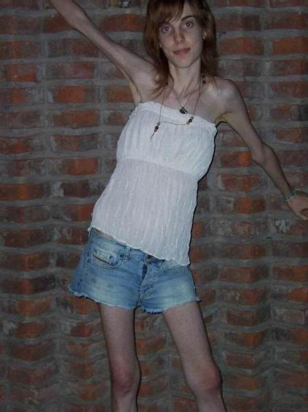 funny image clip anorexic girls funny picture funny