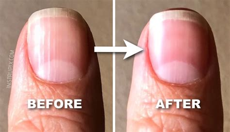 med si鑒e fingernails indicate health problems pictures to pin on thepinsta