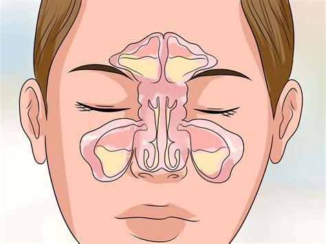 How Antibiotics Turn Temporary Sinus Pain Into Chronic