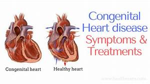 Congenital heart disease in infants symptoms and ...