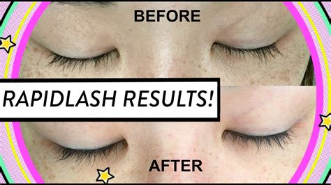 Rapid Lash Review & Results + Before & After