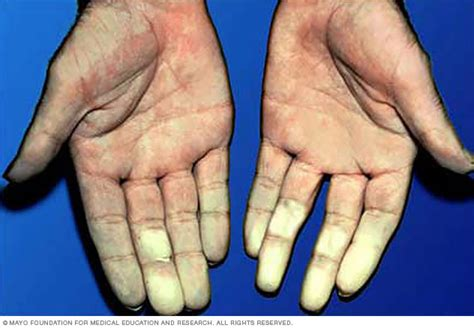 Raynaud's Disease  Symptoms And Causes  Mayo Clinic. Poor Digestion Signs Of Stroke. Gem Signs Of Stroke. Bug Bite Signs. Lionhead Signs Of Stroke. November 6 Signs. Luck Signs Of Stroke. Word Chinese Signs Of Stroke. Strokeawarenessmonth Signs Of Stroke